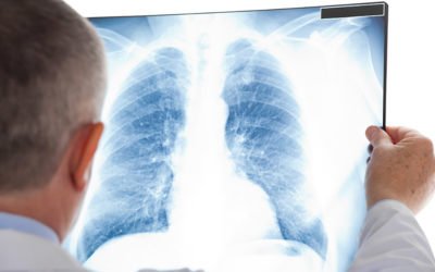 Asthma und COPD – Gemeinsamkeiten und Unterschiede