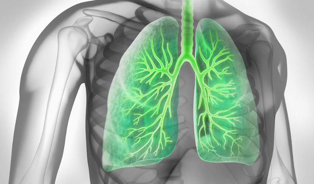 Lunge Asthma bronchiale