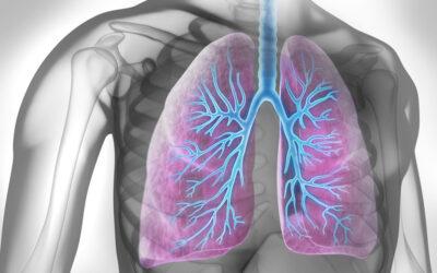 Die 4 COPD-Stadien nach GOLD