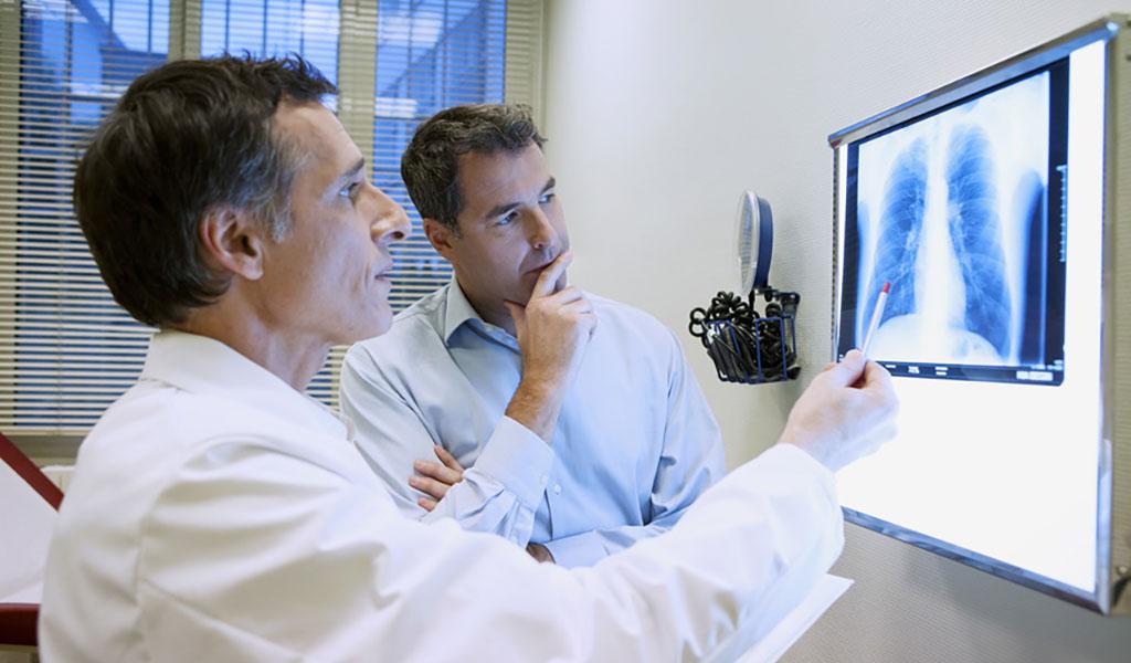 Behandlung des schweren Lungenemphysems