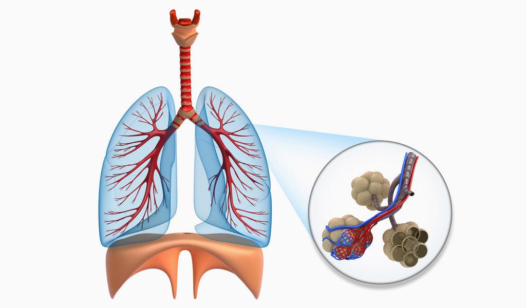 Lungenemphysem – Was ist ein Emphysem?